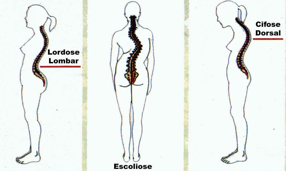 postura (1)