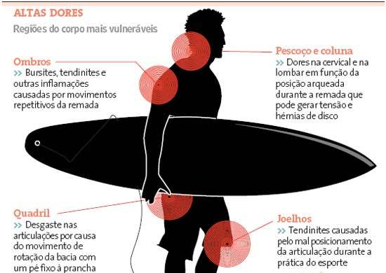 lesoes_surf